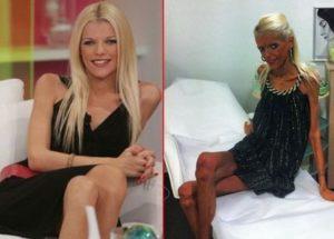 Анорексичката Нана Карагиани почина, болестта надделя